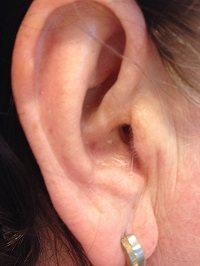 Micro mold oorstukje